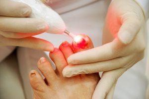 laserterapia na unha dos pés