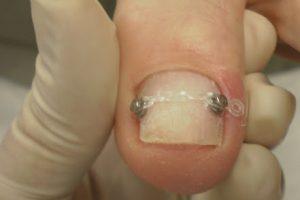 tratamento com órtese para correção da unha do pé